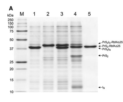 Efficiency of expression and solubility of PrS2IN and PrS2IC
